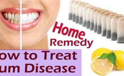 Home Remedies to Prevent Gum Bleeding Naturally